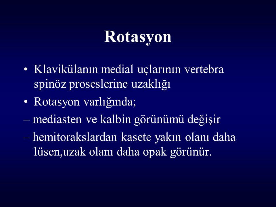 Rotasyon Klavikülanın medial uçlarının vertebra spinöz proseslerine uzaklığı. Rotasyon varlığında;