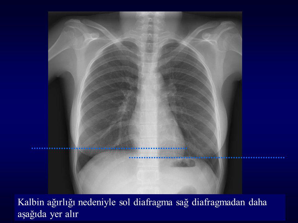 Kalbin ağırlığı nedeniyle sol diafragma sağ diafragmadan daha aşağıda yer alır