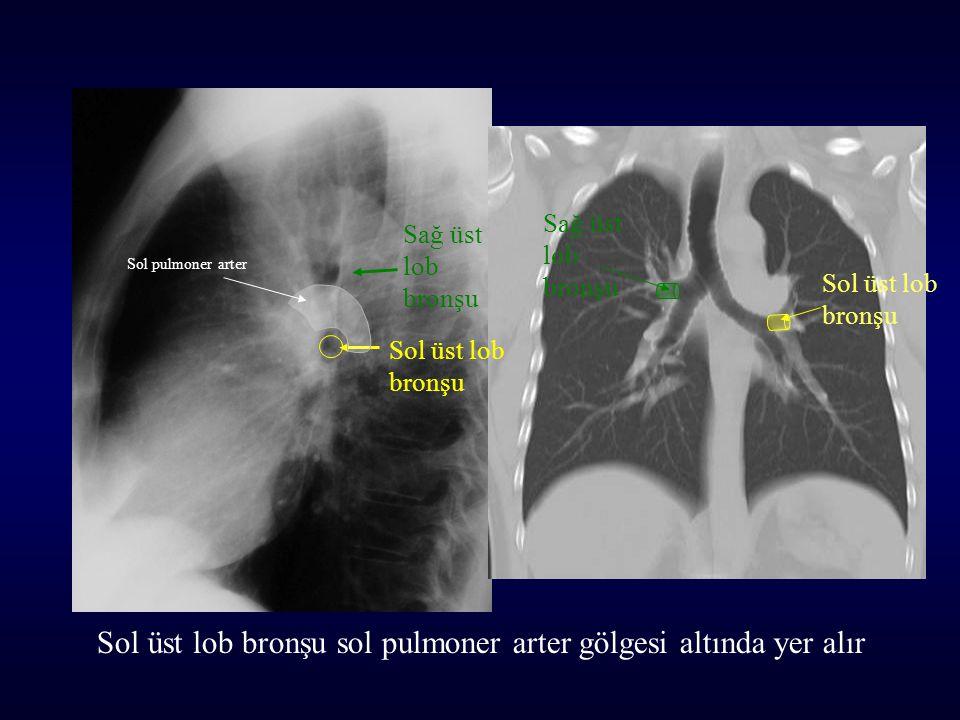 Sol üst lob bronşu sol pulmoner arter gölgesi altında yer alır