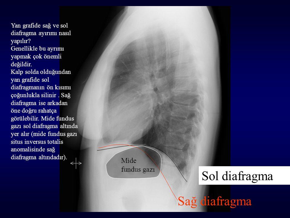 Sol diafragma Sağ diafragma Mide fundus gazı