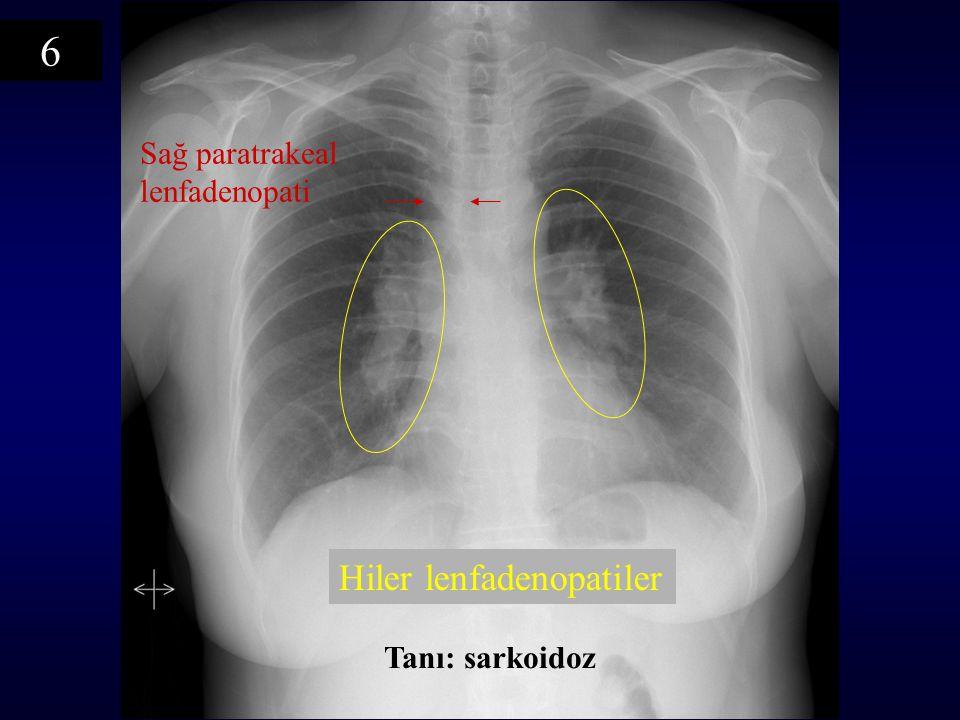 6 Sağ paratrakeal lenfadenopati Hiler lenfadenopatiler Tanı: sarkoidoz