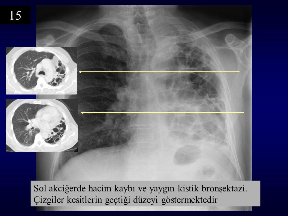 15 Sol akciğerde hacim kaybı ve yaygın kistik bronşektazi.