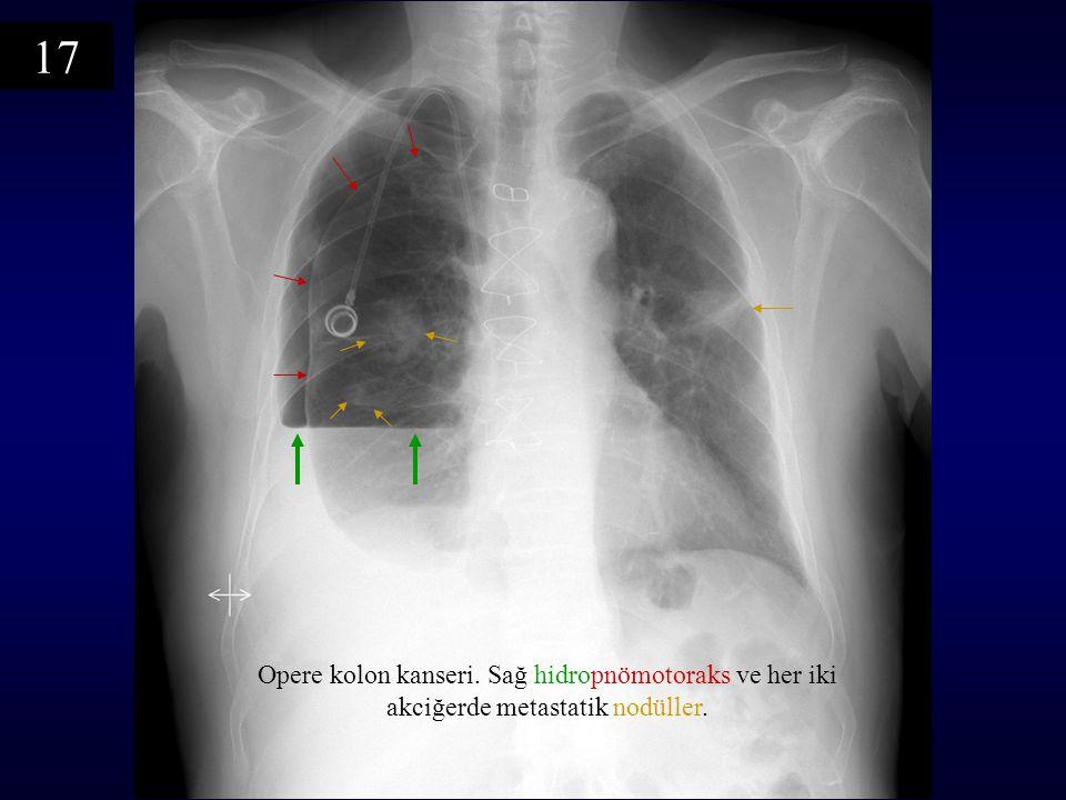 17 Opere kolon kanseri. Sağ hidropnömotoraks ve her iki akciğerde metastatik nodüller.