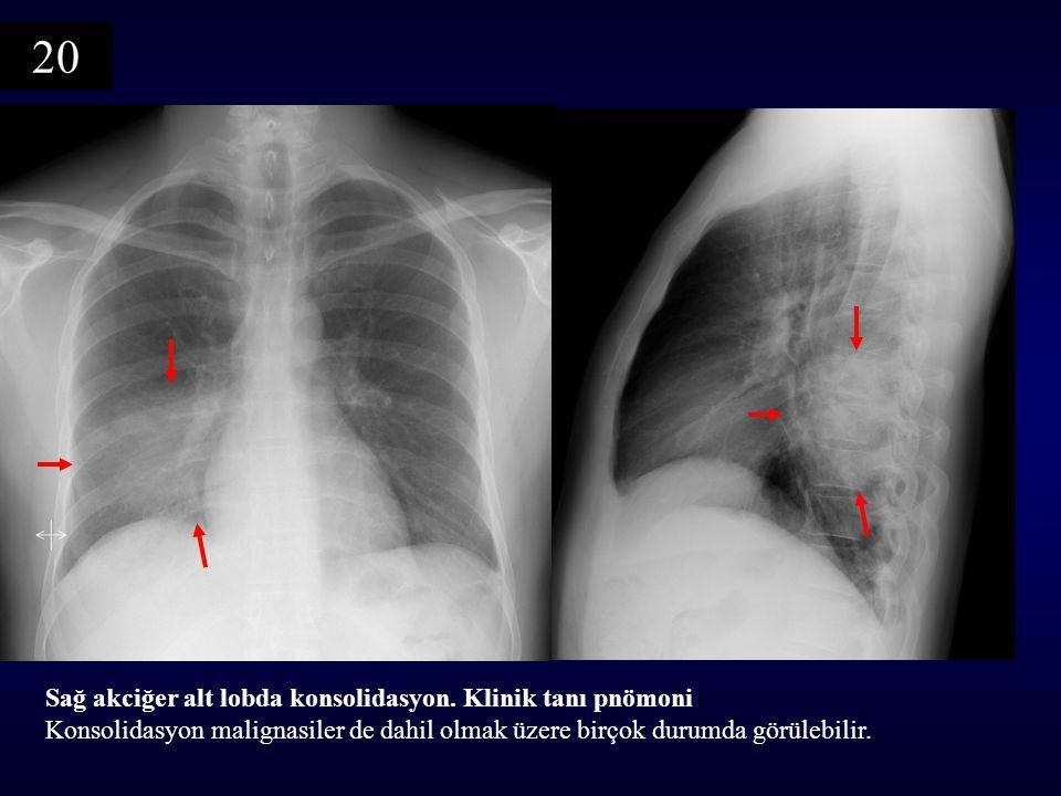 20 Sağ akciğer alt lobda konsolidasyon. Klinik tanı pnömoni