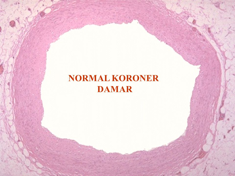 NORMAL KORONER DAMAR