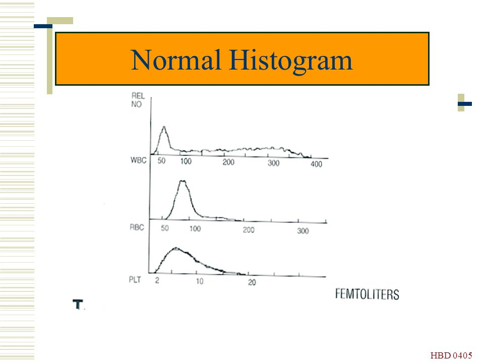 Normal Histogram HBD 0405