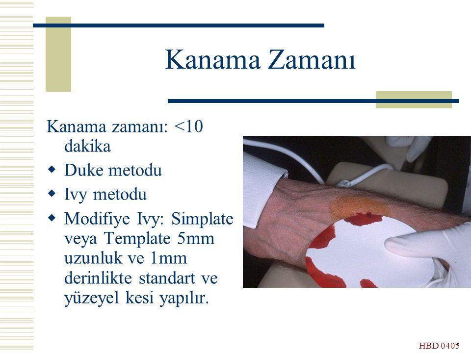 Kanama Zamanı Kanama zamanı: <10 dakika Duke metodu Ivy metodu