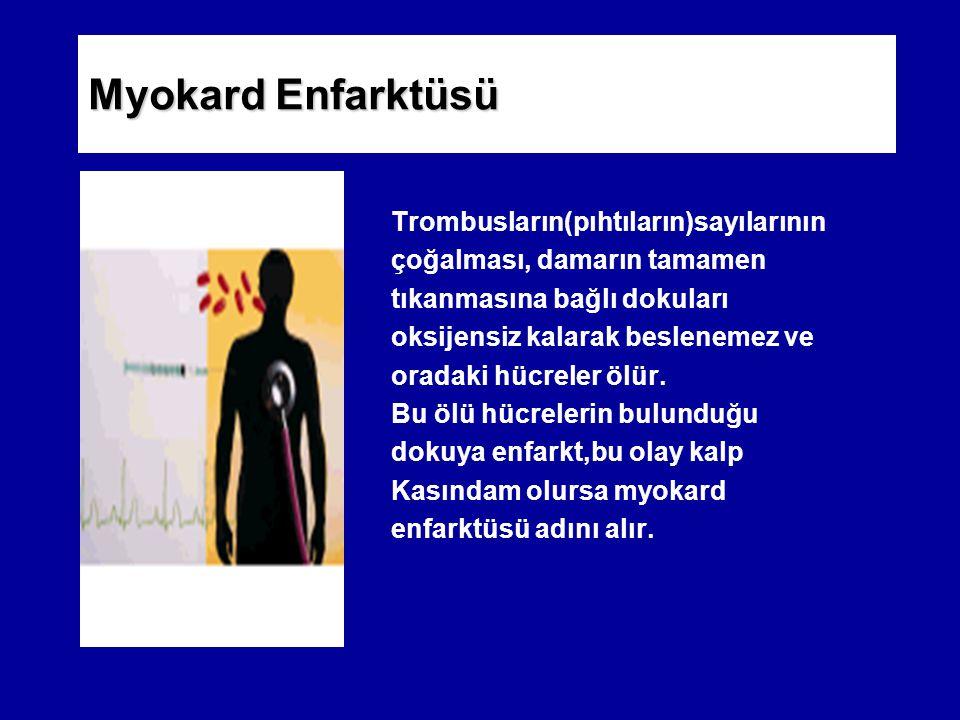Myokard Enfarktüsü Trombusların(pıhtıların)sayılarının
