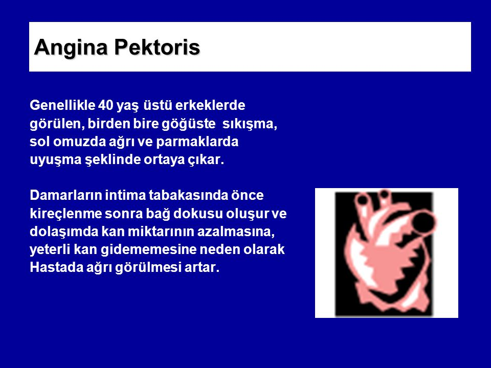 Angina Pektoris Genellikle 40 yaş üstü erkeklerde