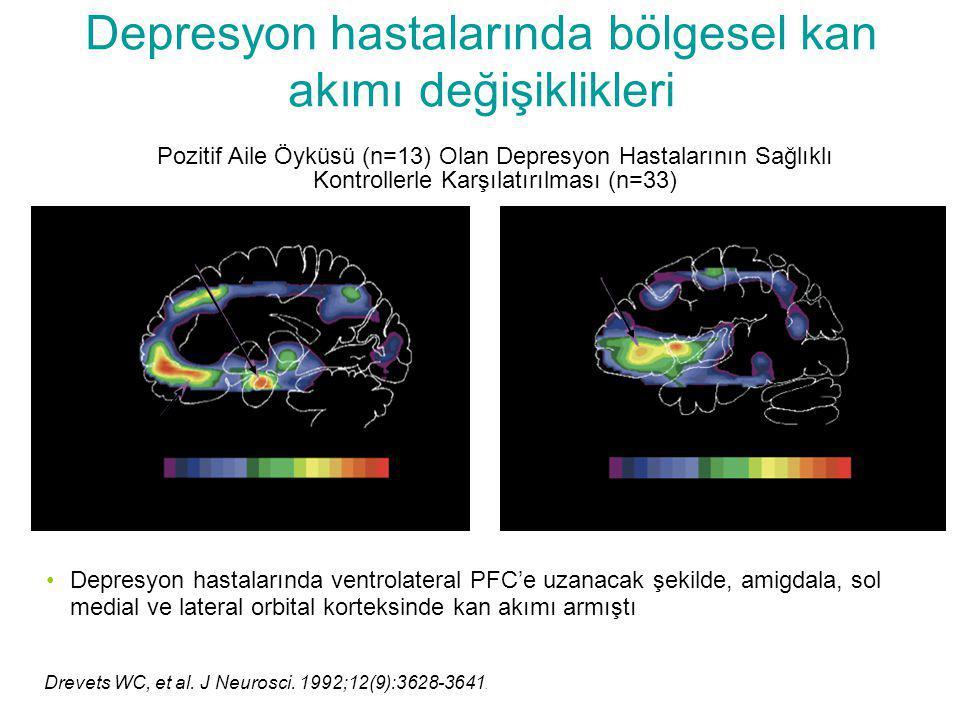 Depresyon hastalarında bölgesel kan akımı değişiklikleri