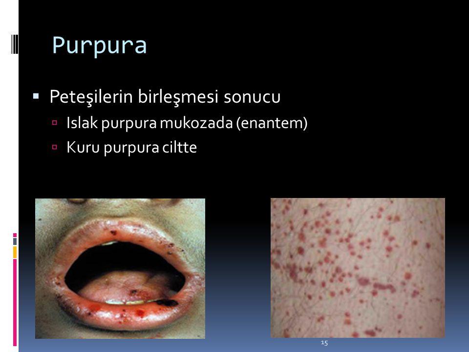 Purpura Peteşilerin birleşmesi sonucu Islak purpura mukozada (enantem)