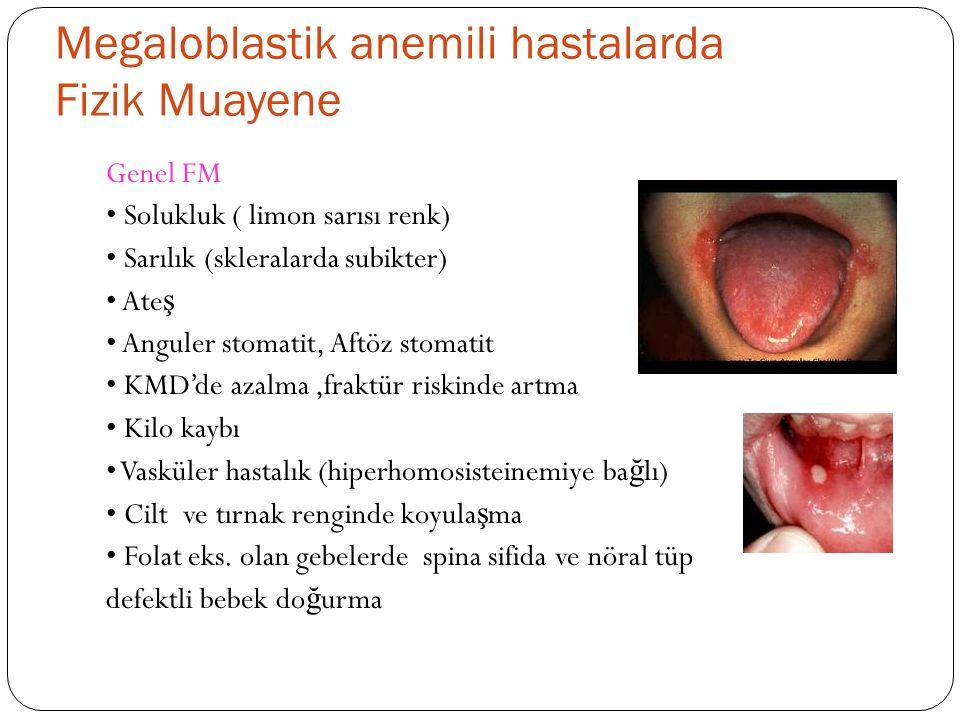 Megaloblastik anemili hastalarda Fizik Muayene