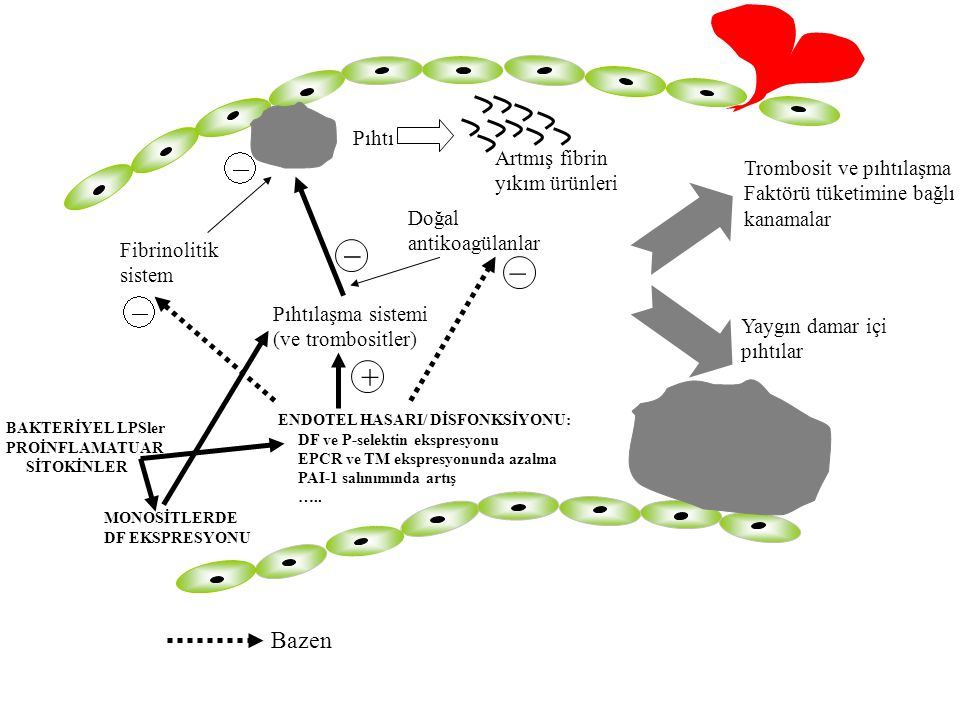 _ _ + Bazen Pıhtı Artmış fibrin Trombosit ve pıhtılaşma yıkım ürünleri