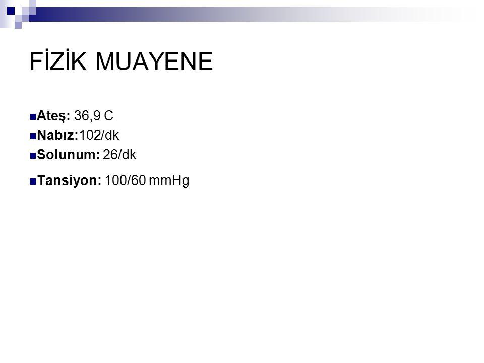 FİZİK MUAYENE Ateş: 36,9 C Nabız:102/dk Solunum: 26/dk