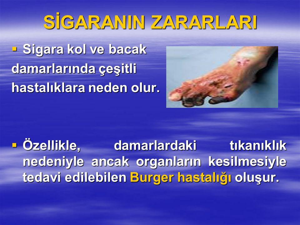 SİGARANIN ZARARLARI Sigara kol ve bacak damarlarında çeşitli