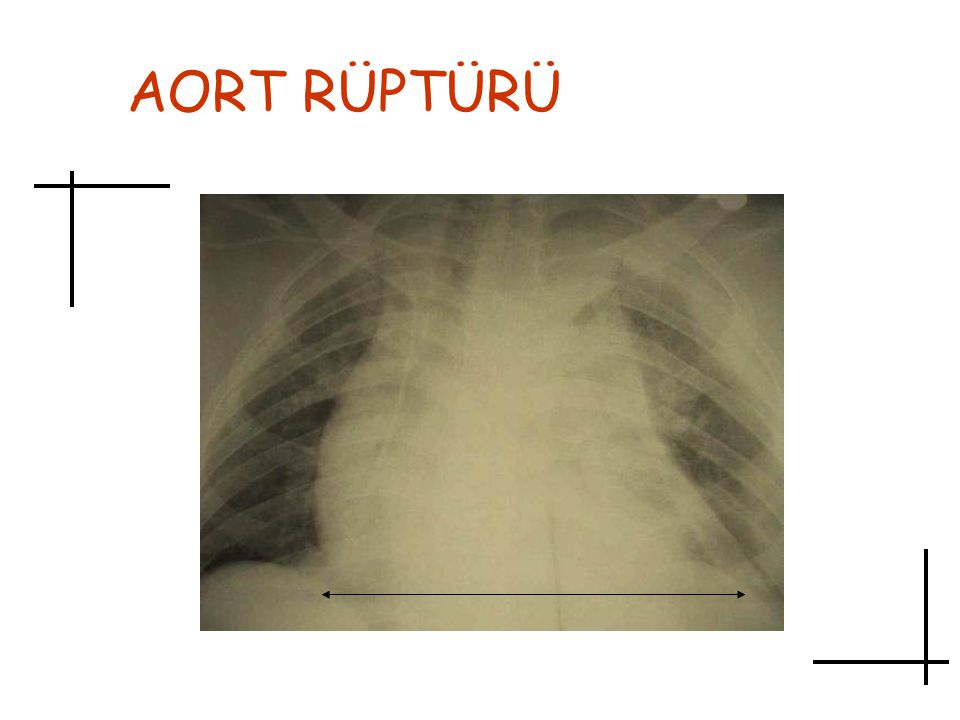 AORT RÜPTÜRÜ Aort rüptüründe sık görülen bir bulgu, göğüs filminde mediastende genişlemedir.