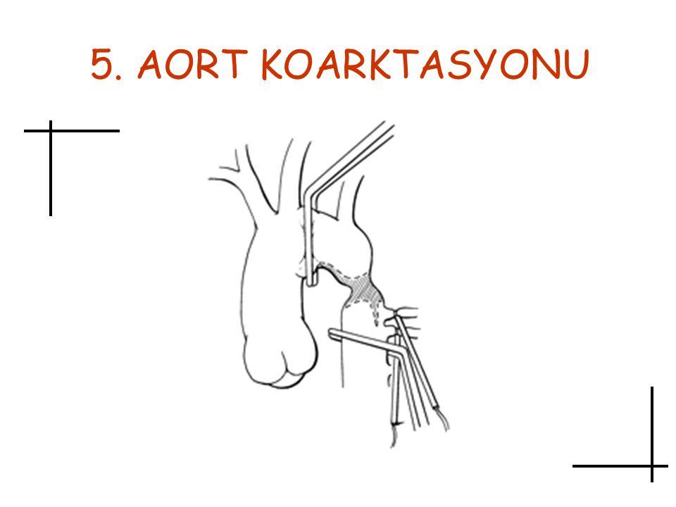 5. AORT KOARKTASYONU Aort koarktasyonu