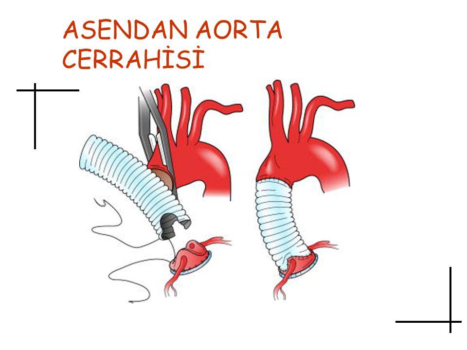 ASENDAN AORTA CERRAHİSİ