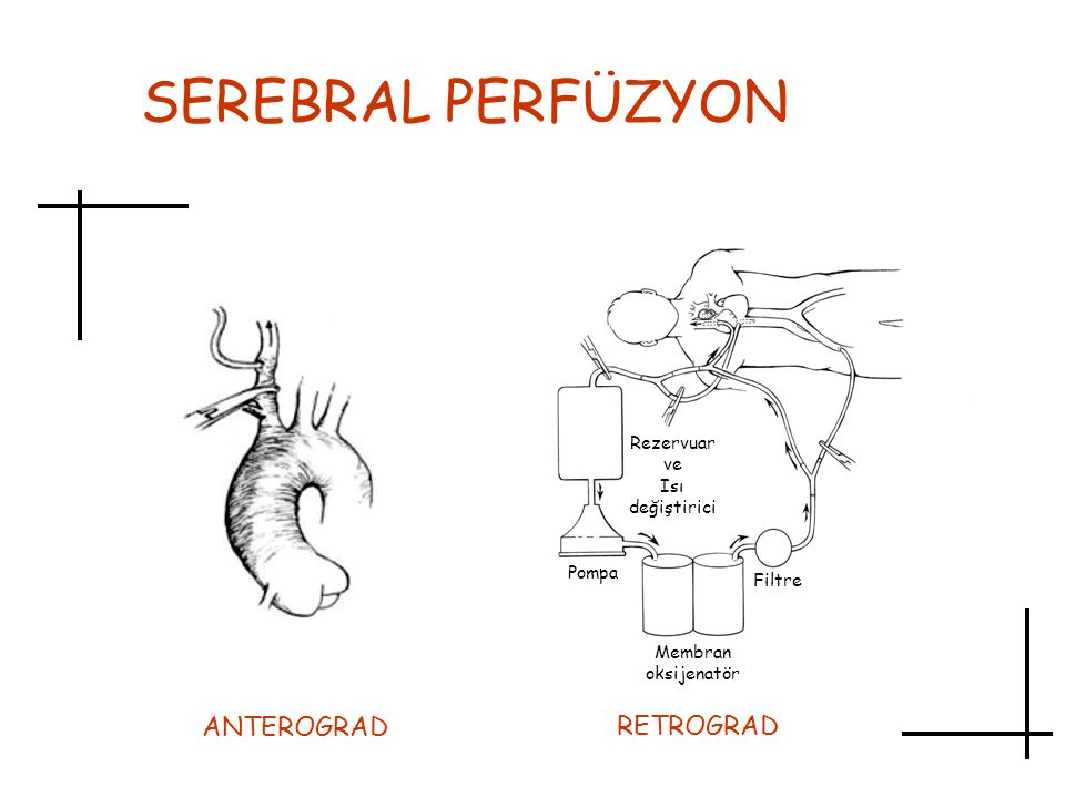 SEREBRAL PERFÜZYON ANTEROGRAD RETROGRAD Rezervuar ve Isı değiştirici