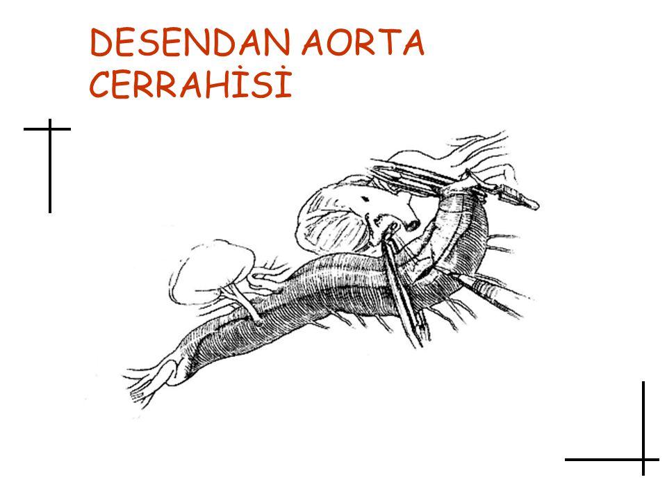 DESENDAN AORTA CERRAHİSİ