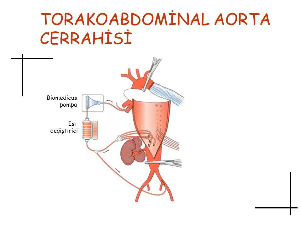 TORAKOABDOMİNAL AORTA CERRAHİSİ