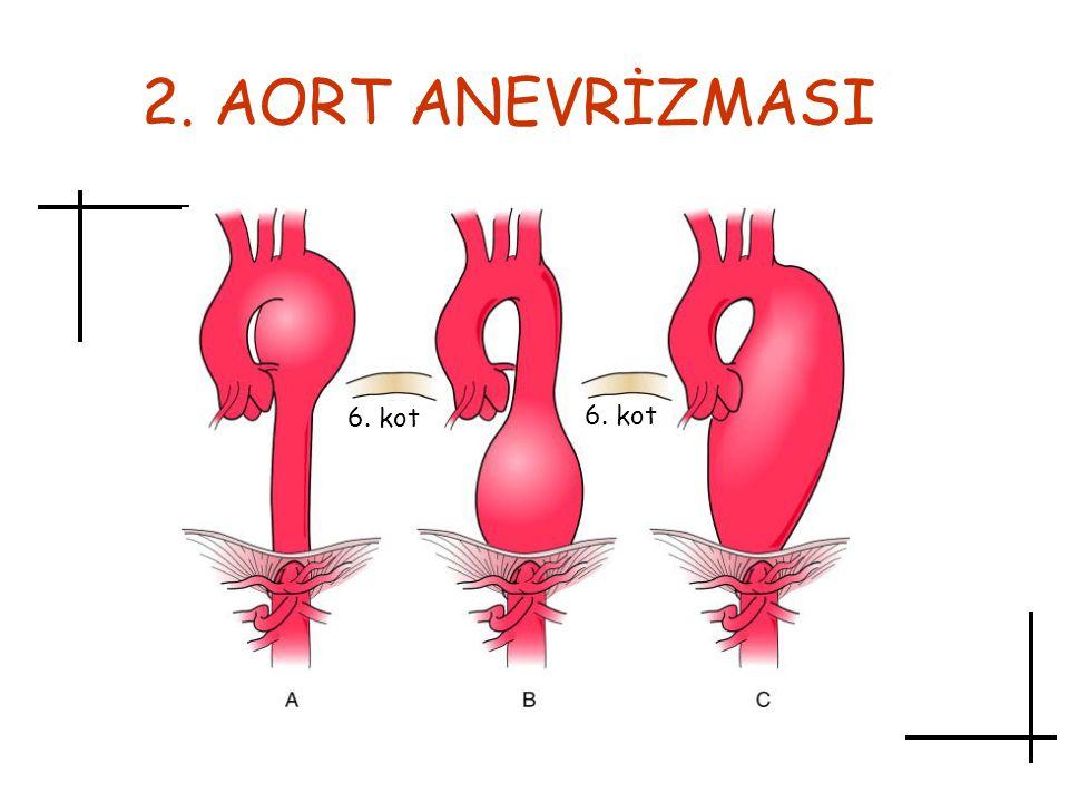 2. AORT ANEVRİZMASI 6. kot 6. kot Aort anevrizması