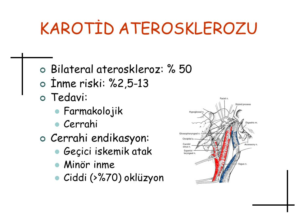 KAROTİD ATEROSKLEROZU
