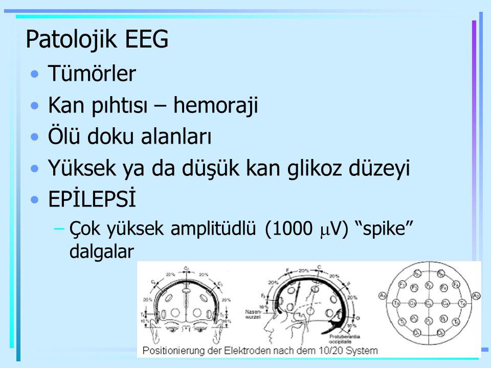 Patolojik EEG Tümörler Kan pıhtısı – hemoraji Ölü doku alanları