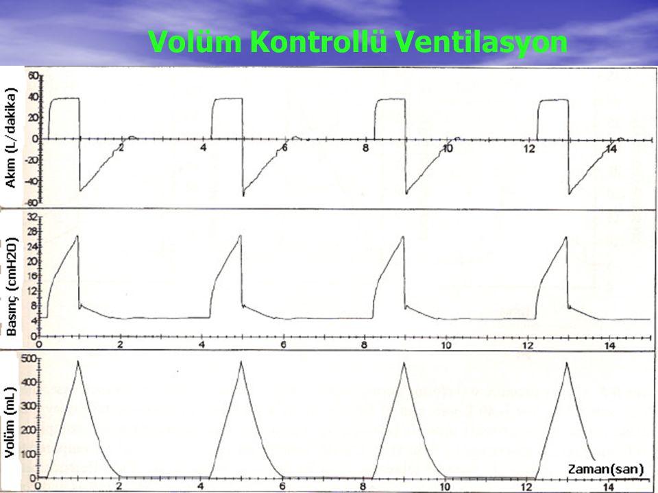Volüm Kontrollü Ventilasyon