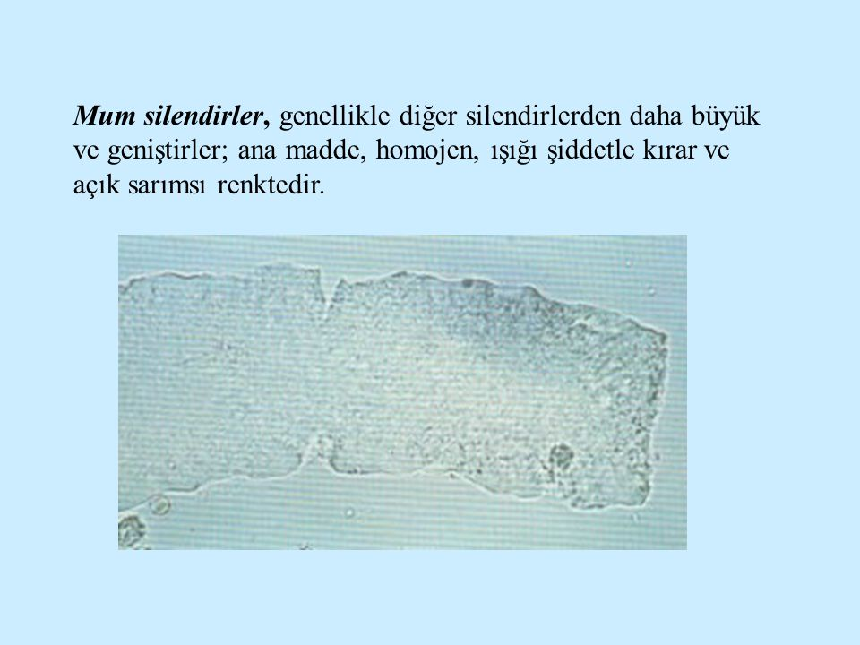 Mum silendirler, genellikle diğer silendirlerden daha büyük ve geniştirler; ana madde, homojen, ışığı şiddetle kırar ve açık sarımsı renktedir.