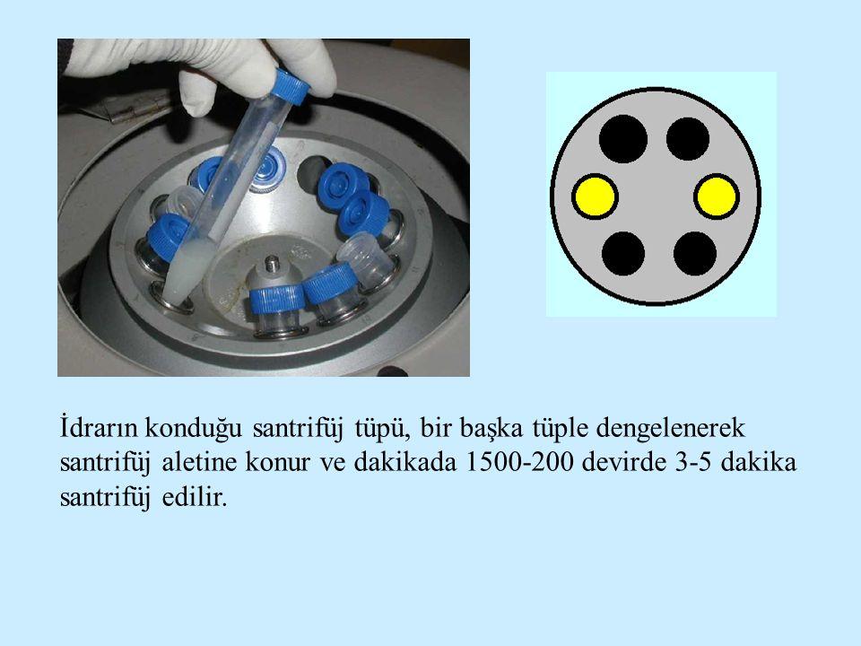 İdrarın konduğu santrifüj tüpü, bir başka tüple dengelenerek santrifüj aletine konur ve dakikada 1500-200 devirde 3-5 dakika santrifüj edilir.