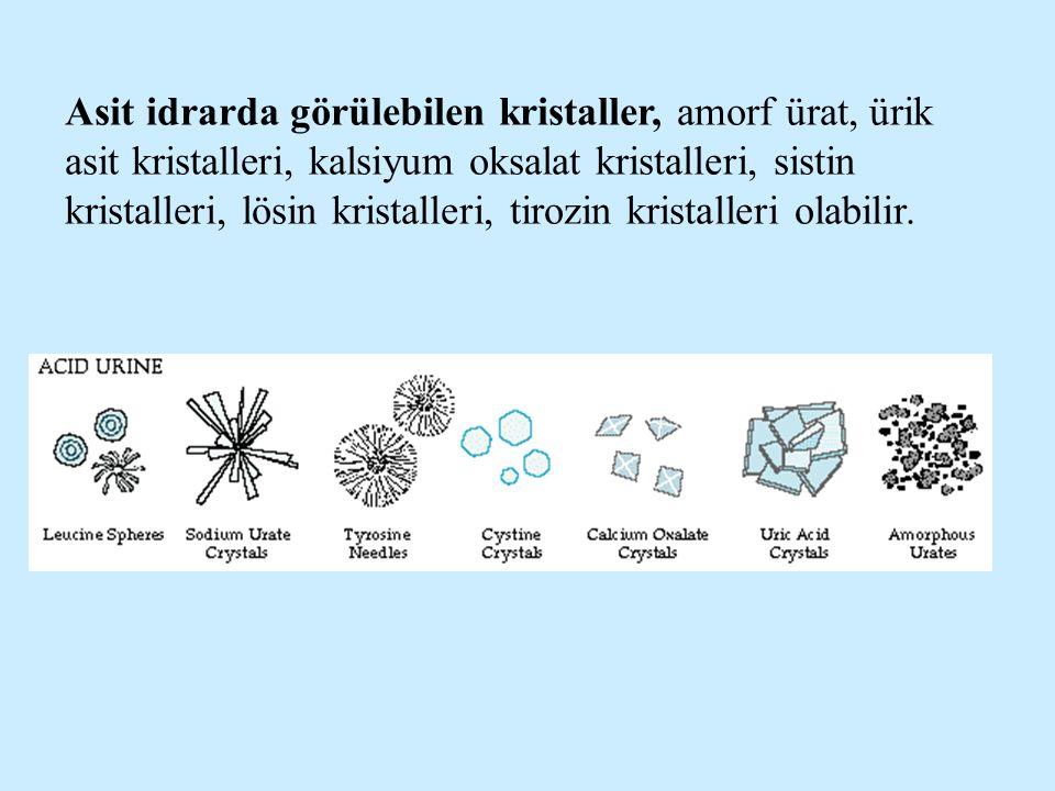Asit idrarda görülebilen kristaller, amorf ürat, ürik asit kristalleri, kalsiyum oksalat kristalleri, sistin kristalleri, lösin kristalleri, tirozin kristalleri olabilir.