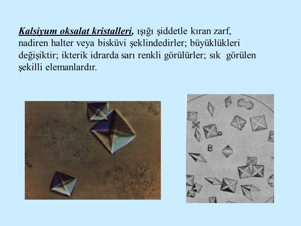 Kalsiyum oksalat kristalleri, ışığı şiddetle kıran zarf, nadiren halter veya bisküvi şeklindedirler; büyüklükleri değişiktir; ikterik idrarda sarı renkli görülürler; sık görülen şekilli elemanlardır.
