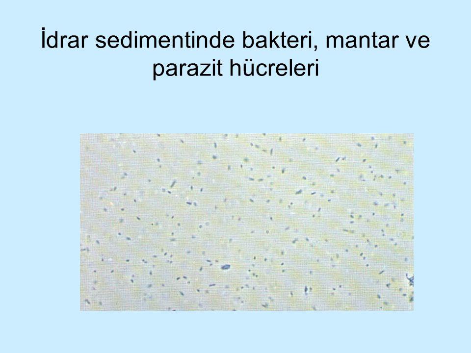 İdrar sedimentinde bakteri, mantar ve parazit hücreleri