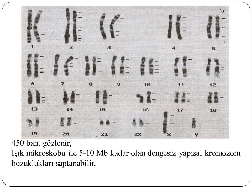 450 bant gözlenir, Işık mikroskobu ile 5-10 Mb kadar olan dengesiz yapısal kromozom.