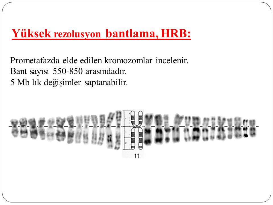 Yüksek rezolusyon bantlama, HRB: