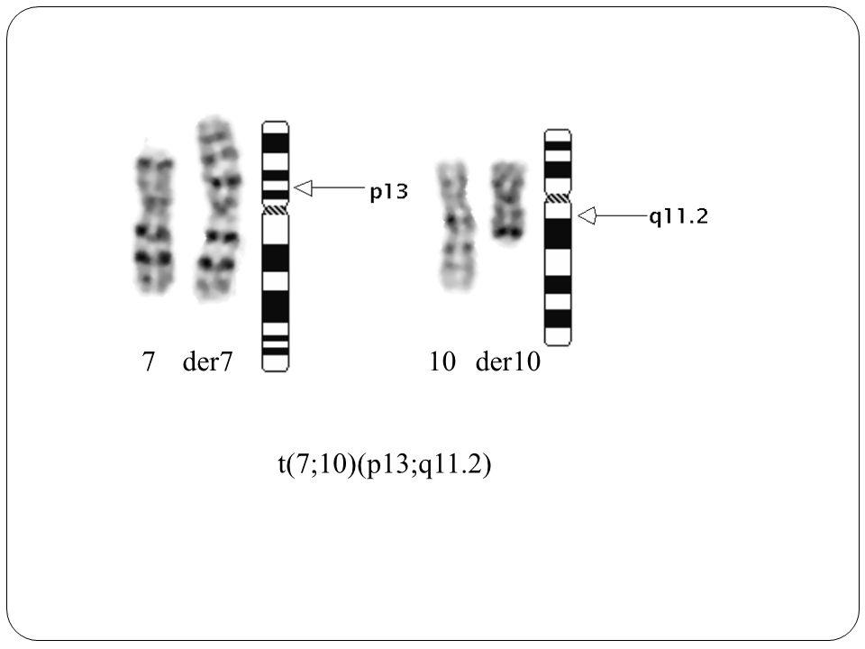 7 der7 10 der10 t(7;10)(p13;q11.2)