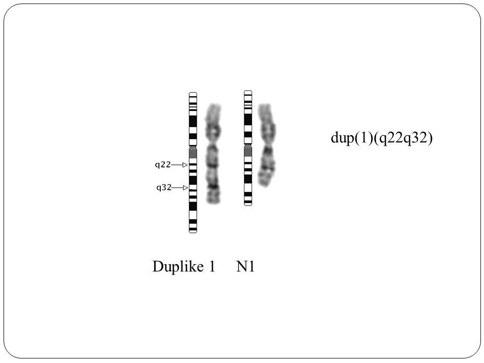 dup(1)(q22q32) Duplike 1 N1
