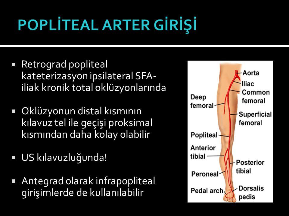 POPLİTEAL ARTER GİRİŞİ