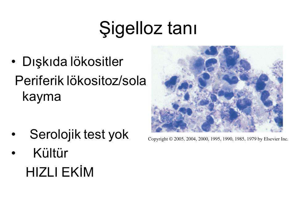 Şigelloz tanı Dışkıda lökositler Periferik lökositoz/sola kayma