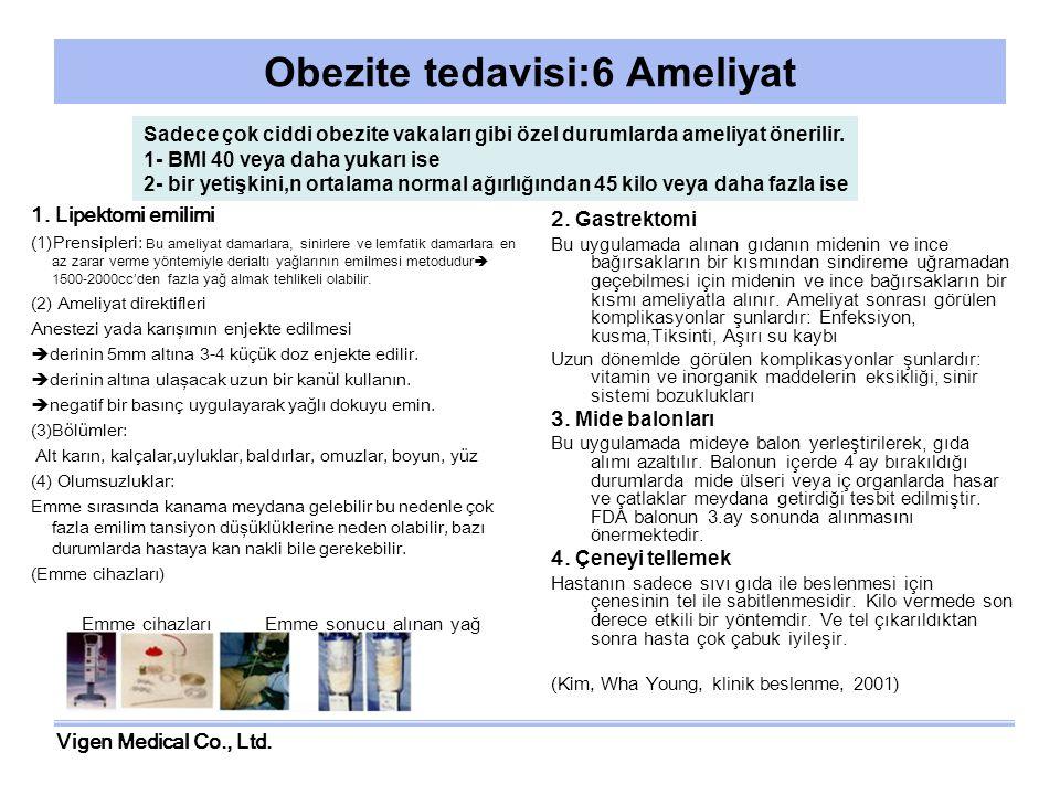 Obezite tedavisi:6 Ameliyat