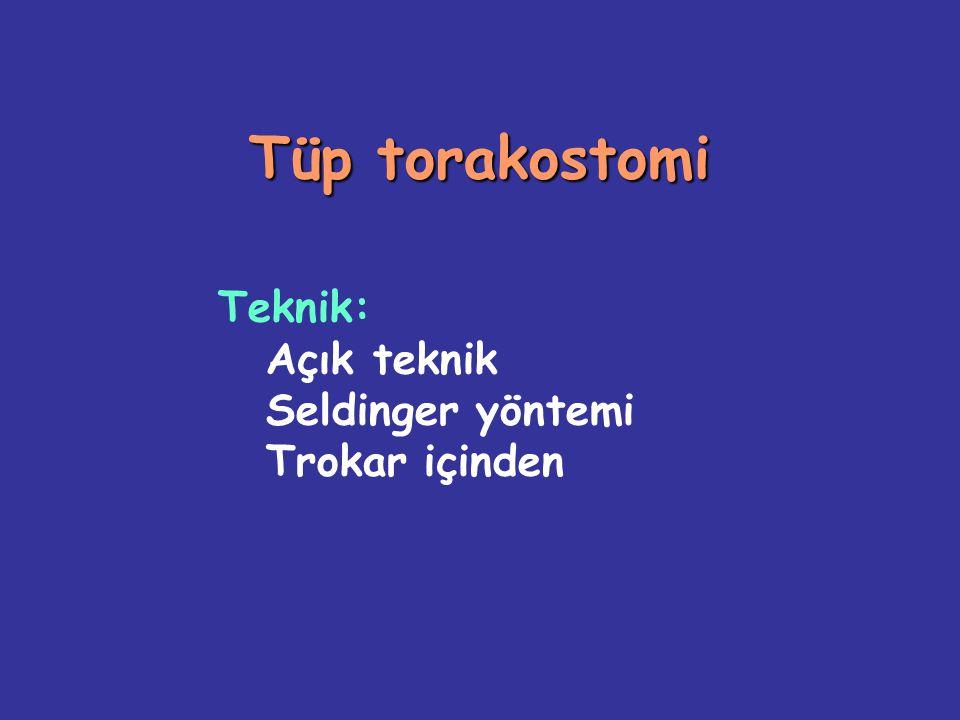 Tüp torakostomi Teknik: Açık teknik Seldinger yöntemi Trokar içinden