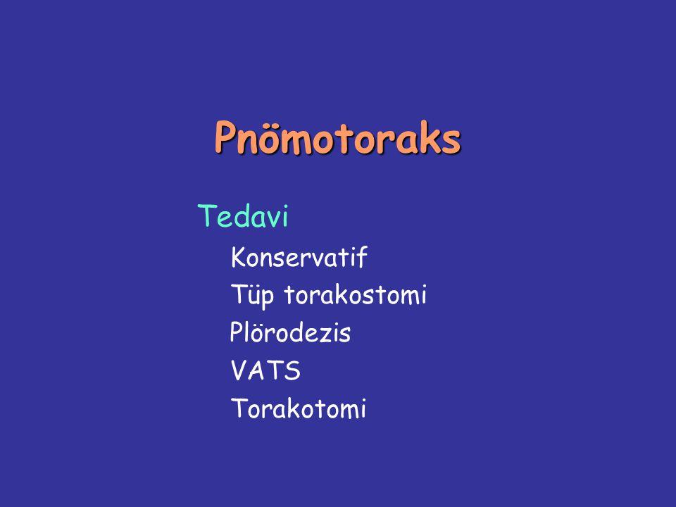 Tedavi Konservatif Tüp torakostomi Plörodezis VATS Torakotomi
