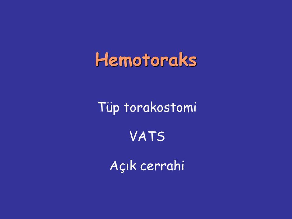 Tüp torakostomi VATS Açık cerrahi