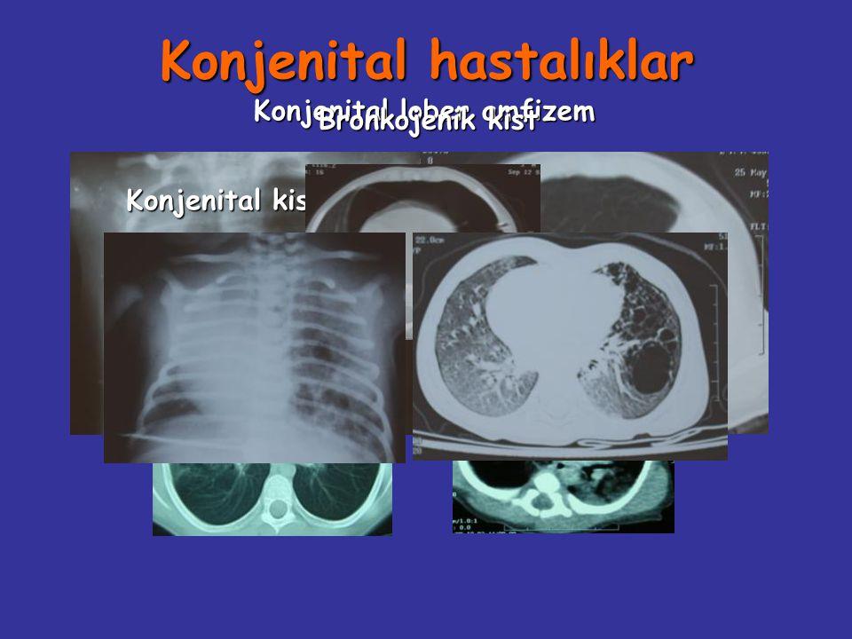 Konjenital hastalıklar