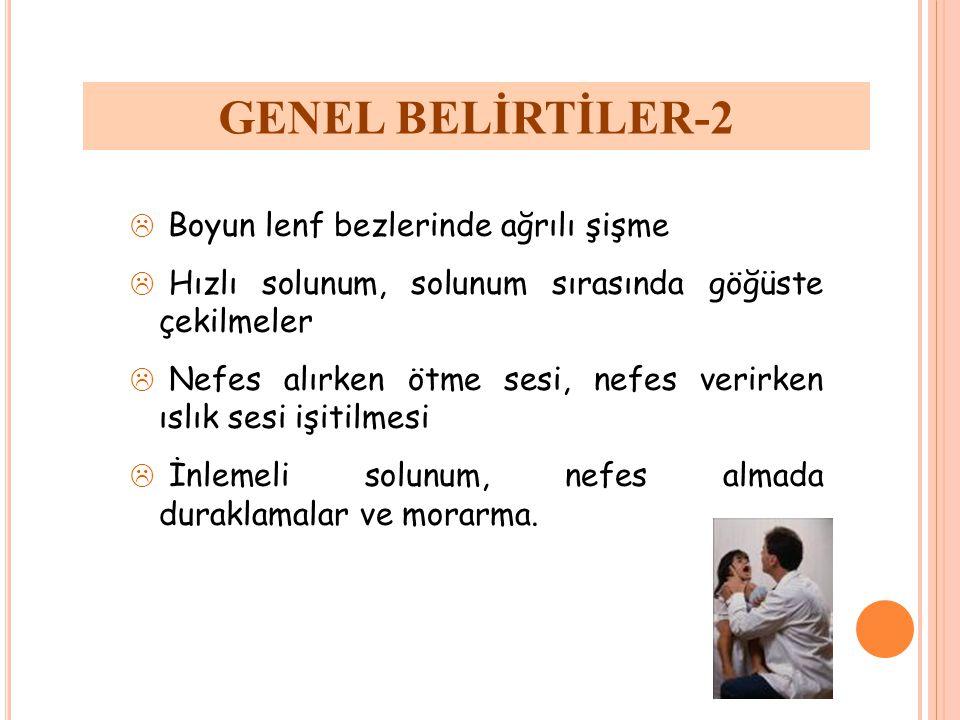 GENEL BELİRTİLER-2 Boyun lenf bezlerinde ağrılı şişme
