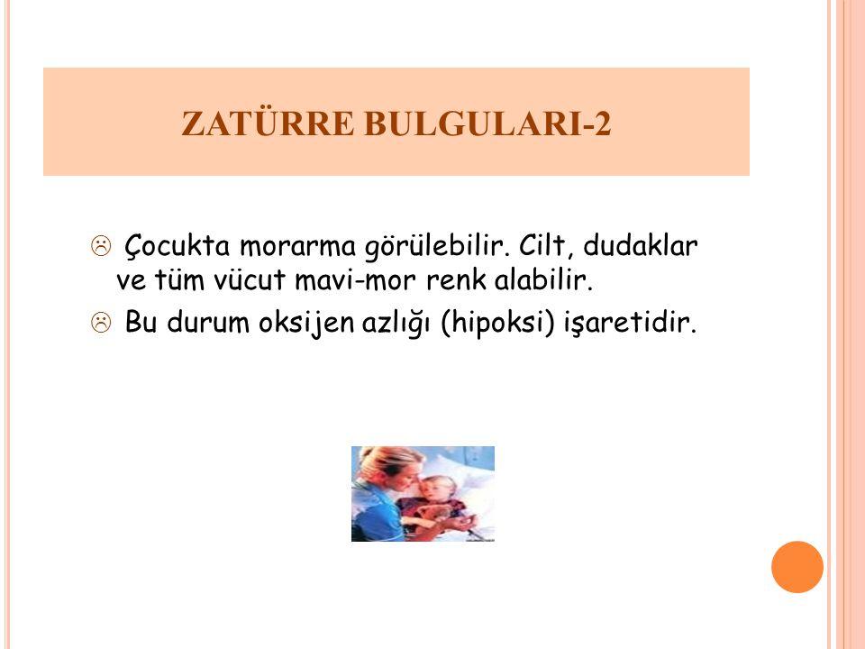 ZATÜRRE BULGULARI-2 Çocukta morarma görülebilir. Cilt, dudaklar ve tüm vücut mavi-mor renk alabilir.