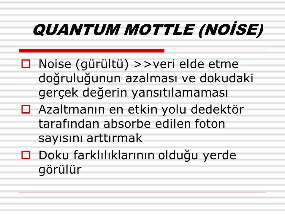 QUANTUM MOTTLE (NOİSE)