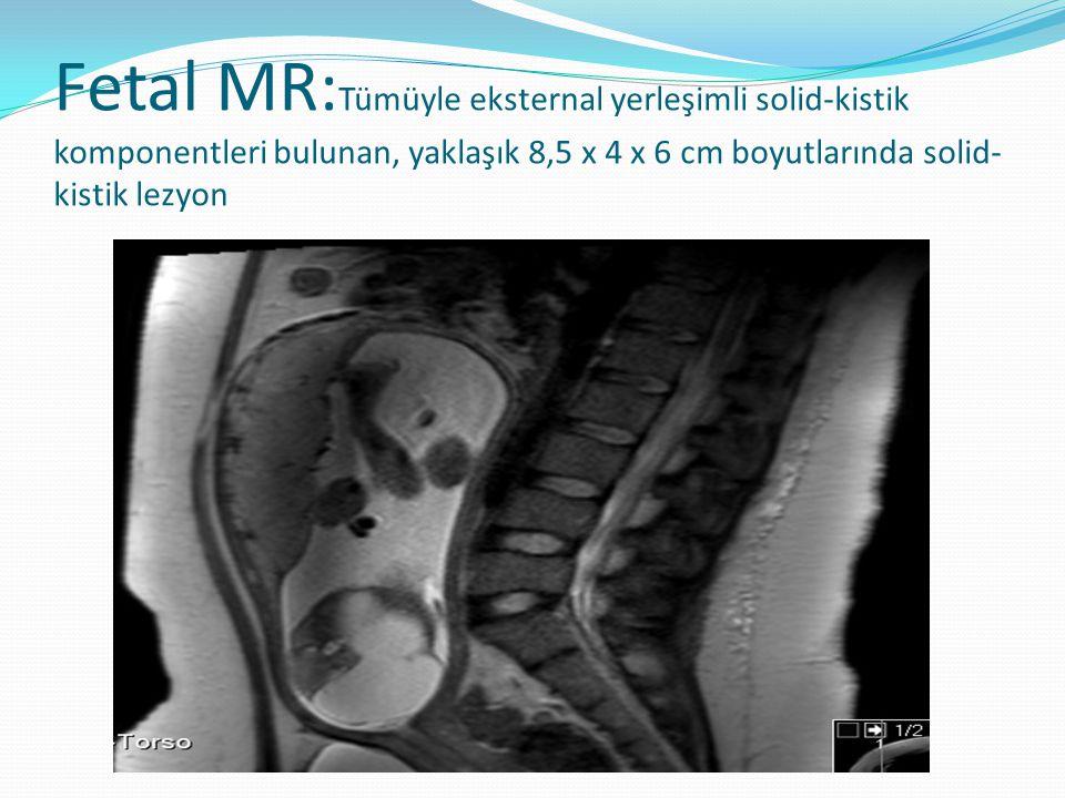 Fetal MR:Tümüyle eksternal yerleşimli solid-kistik komponentleri bulunan, yaklaşık 8,5 x 4 x 6 cm boyutlarında solid-kistik lezyon