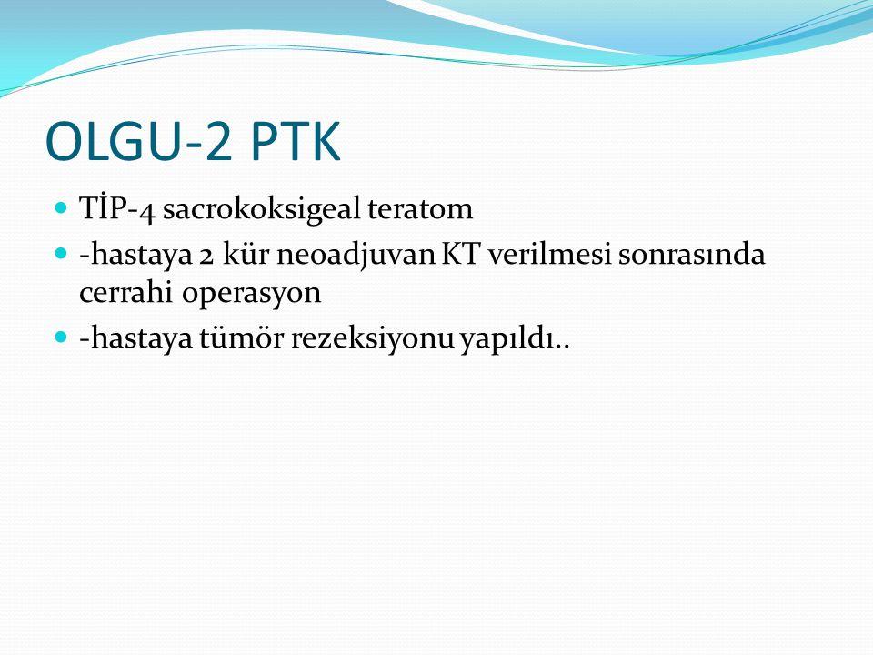 OLGU-2 PTK TİP-4 sacrokoksigeal teratom
